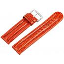 grossiste Accessoires & Pièce détachée: Bracelet de remplacement, anti-allergique, ...