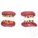 dentier 2pcs dents pourries mix ii